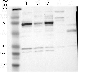 Western blot - Anti-HTF9C antibody (ab121126)