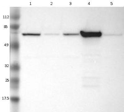 Western blot - Anti-FRMD6 antibody (ab121133)