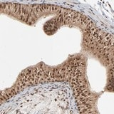 Immunohistochemistry (Formalin/PFA-fixed paraffin-embedded sections) - Anti-LOC646851 antibody (ab121162)