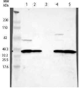 Western blot - Anti-ZCCHC16 antibody (ab121184)