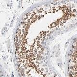 Immunohistochemistry (Formalin/PFA-fixed paraffin-embedded sections) - Anti-IFT43 antibody (ab121195)