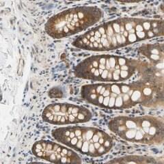 Immunohistochemistry (Formalin/PFA-fixed paraffin-embedded sections) - Anti-LRRC47 antibody (ab121283)