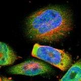 Immunocytochemistry/ Immunofluorescence - Anti-TMEM109 antibody (ab121349)