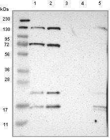 Western blot - Anti-ILDR2 antibody (ab121369)