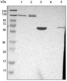 Western blot - Anti-PDE4DIP antibody (ab121375)