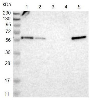 Western blot - Anti-TMX3 antibody (ab121414)