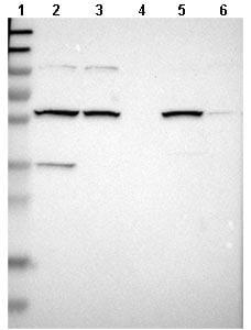 Western blot - Anti-MBOAT2 antibody (ab121453)