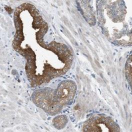 Immunohistochemistry (Formalin/PFA-fixed paraffin-embedded sections) - Anti-B4GALNT2 antibody (ab121484)