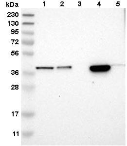 Western blot - Anti-SLC35E1 antibody (ab121501)