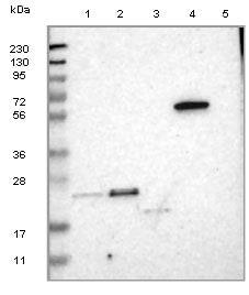 Western blot - Anti-TEX261 antibody (ab121506)