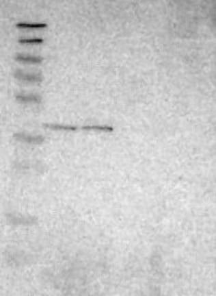 Western blot - Anti-C6orf72 antibody (ab121528)
