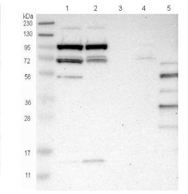 Western blot - Anti-SLFN5 antibody (ab121537)