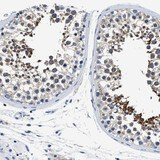 Immunohistochemistry (Formalin/PFA-fixed paraffin-embedded sections) - Anti-MEA1 antibody (ab121543)