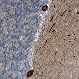 Immunohistochemistry (Formalin/PFA-fixed paraffin-embedded sections) - Anti-PCNXL3 antibody (ab121555)