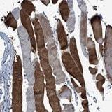 Immunohistochemistry (Formalin/PFA-fixed paraffin-embedded sections) - Anti-RWDD2B antibody (ab121567)