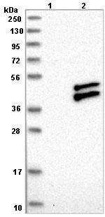Western blot - Anti-RWDD2B antibody (ab121567)