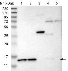 Western blot - Anti-C22orf40 antibody (ab121580)