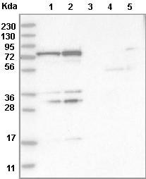 Western blot - Anti-PTCD1 antibody (ab121620)