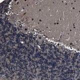 Immunohistochemistry (Formalin/PFA-fixed paraffin-embedded sections) - Anti-RSBN1L antibody (ab121626)