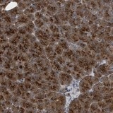 Immunohistochemistry (Formalin/PFA-fixed paraffin-embedded sections) - Anti-C9orf16 antibody (ab121638)