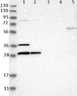 Western blot - Anti-FLJ36733 antibody (ab121688)