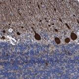 Immunohistochemistry (Formalin/PFA-fixed paraffin-embedded sections) - Anti-TXNDC17 antibody (ab121725)