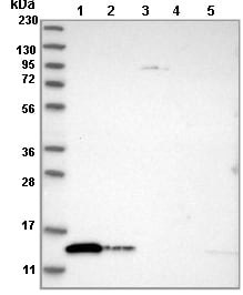 Western blot - Anti-TXNDC17 antibody (ab121725)