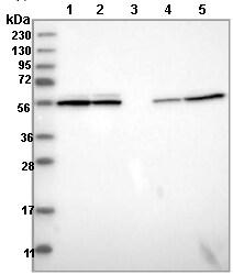 Western blot - Anti-CCDC40 antibody (ab121727)