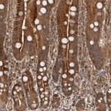 Immunohistochemistry (Formalin/PFA-fixed paraffin-embedded sections) - Anti-EFCAB1 antibody (ab121758)