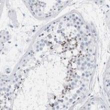Immunohistochemistry (Formalin/PFA-fixed paraffin-embedded sections) - Anti-SPACA3 antibody (ab121768)