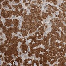 Immunohistochemistry (Formalin/PFA-fixed paraffin-embedded sections) - Anti-MUC12 antibody (ab121777)