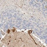 Immunohistochemistry (Formalin/PFA-fixed paraffin-embedded sections) - Anti-LMCD1 antibody (ab121788)