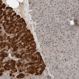Immunohistochemistry (Formalin/PFA-fixed paraffin-embedded sections) - Anti-ARMC7 antibody (ab121800)