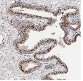 Immunohistochemistry (Formalin/PFA-fixed paraffin-embedded sections) - Anti-SLC38A10 antibody (ab121830)