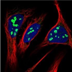 Immunocytochemistry/ Immunofluorescence - Anti-RRP15 antibody (ab121832)