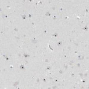 Immunohistochemistry (Formalin/PFA-fixed paraffin-embedded sections) - Anti-RPF1 antibody (ab121833)