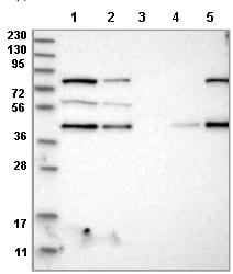 Western blot - Anti-PDCD2 antibody (ab121881)