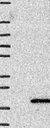 Western blot - Anti-UfSP1 antibody (ab121911)