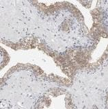 Immunohistochemistry (Formalin/PFA-fixed paraffin-embedded sections) - Anti-FLG2 antibody (ab122011)