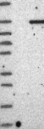 Western blot - Anti-GARNL3 antibody (ab122015)