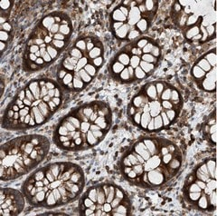 Immunohistochemistry (Formalin/PFA-fixed paraffin-embedded sections) - Anti-C6orf204 antibody (ab122037)