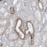 Immunohistochemistry (Formalin/PFA-fixed paraffin-embedded sections) - Anti-TXLNB antibody (ab122111)