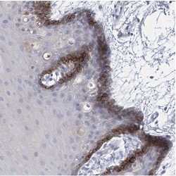 Immunohistochemistry (Formalin/PFA-fixed paraffin-embedded sections) - Anti-SLCO4A1 antibody (ab122124)