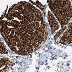 Immunohistochemistry (Formalin/PFA-fixed paraffin-embedded sections) - Anti-SH3BGRL3 antibody (ab122138)