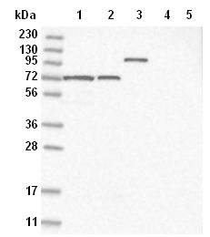 Western blot - Anti-SLC12A8 antibody (ab122152)