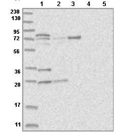 Western blot - Anti-KLHL17 antibody (ab122164)