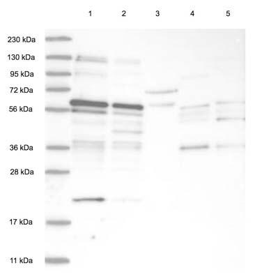 Western blot - Anti-TSPYL1 antibody (ab122200)