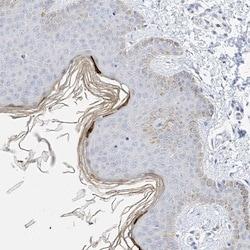 Immunohistochemistry (Formalin/PFA-fixed paraffin-embedded sections) - Anti-KPRP antibody (ab122201)
