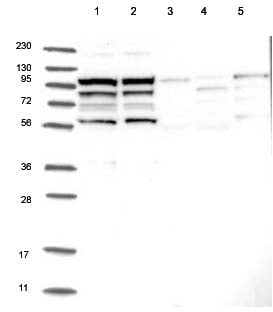 Western blot - Anti-KIAA1522 antibody (ab122203)