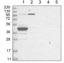 Western blot - Anti-ABHD7 antibody (ab122246)